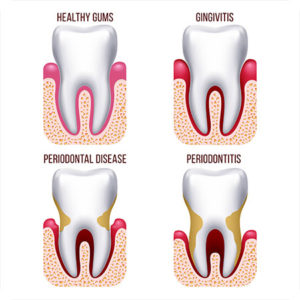 st petersburg fl periodontist gum disease signs