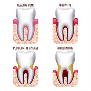 st petersburg fl periodontist gum disease signs