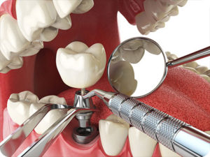 st petersburg dentist teeth in a day dental implants